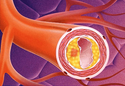 Neoformed atheromatic plaque that reduces vascular lumen.
