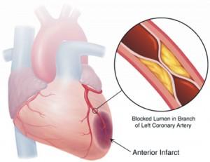 Aterosclerosi cuore compromesso