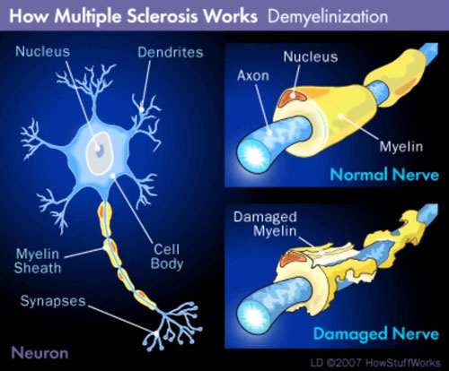 Visible on the right , the destruction of the myelin sheath that covers the nerve with its loss of nerve conduction.